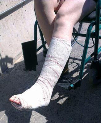 sobrevivir como madre a una pierna escayolada